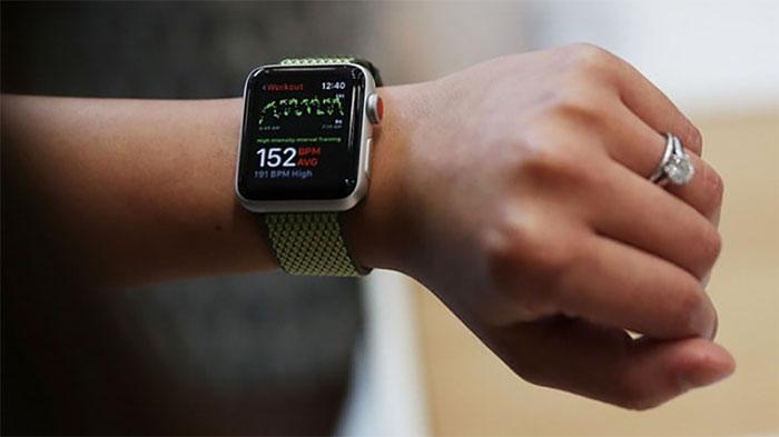 công nghệ điện tâm đồ smartwatch