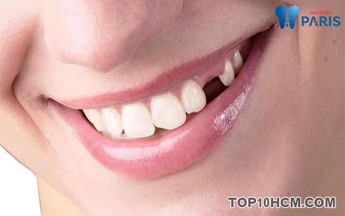 Có cần thiết trồng răng Implant khi mất răng không?