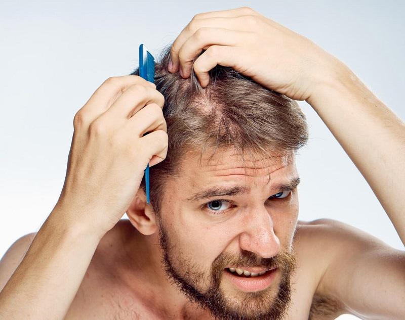 Không còn nỗi lo hóa chất gây hại cho tóc